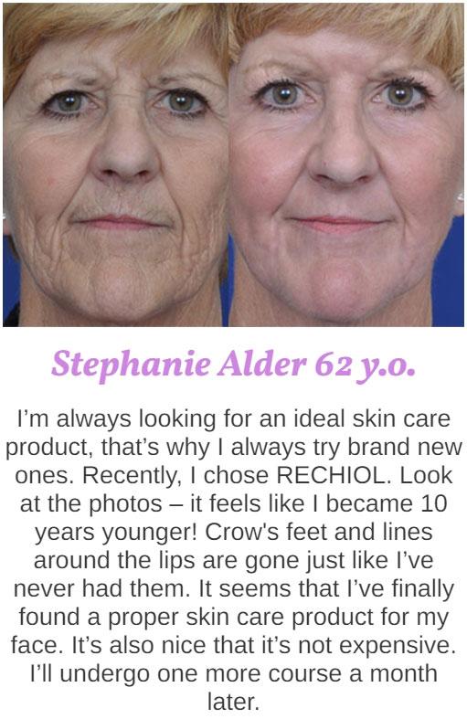 Stephanie Alder's review of Rechiol cream